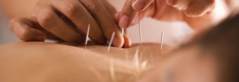 Wellington Physical Therapy and Acupuncture – Flushing